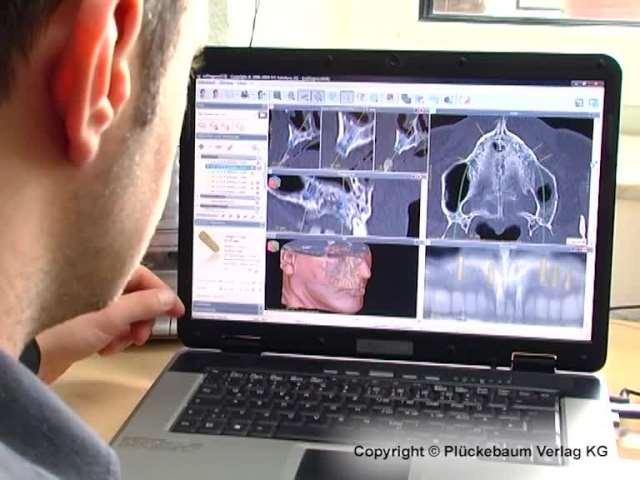 Video 1 Möll Rainer GmbH Dental-Labor