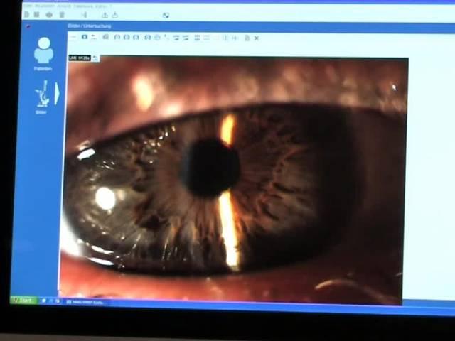 Video 1 AUGENKLINIK & LASERZENTRUM Prof.Dr.med. Matthias Böhnke Dr.med. Lars Wagenfeld
