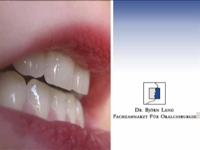 Video 1 Lang Björn Dr.med.dent. , Fachzahnarzt für Oralchirurgie