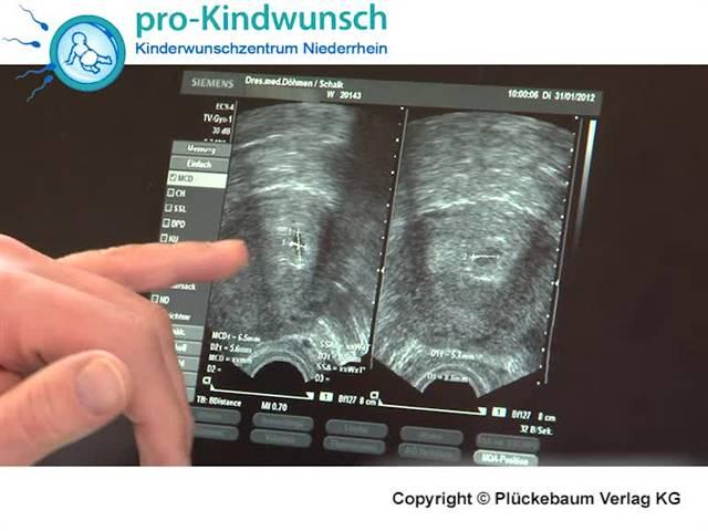 Video 1 Frauenarzt Döhmen, Georg Dr.